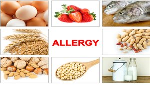 How to efficiently train your staff about food allergies